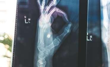 Thumb 09
